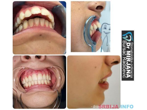 Ortodoncija Loznica