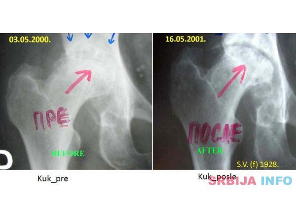 Lecenje kostiju i zglobova